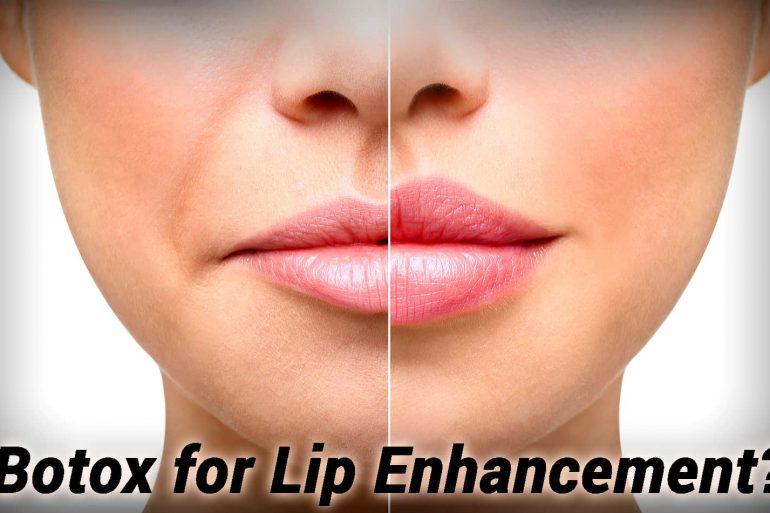 Lip Enhancement with Botox
